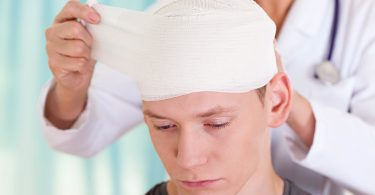 concussion rates in children
